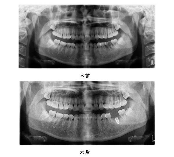 36拔除即刻种植义齿修复